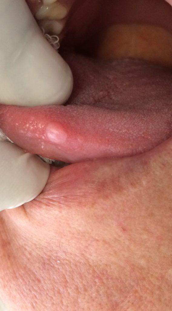 hpv na boca