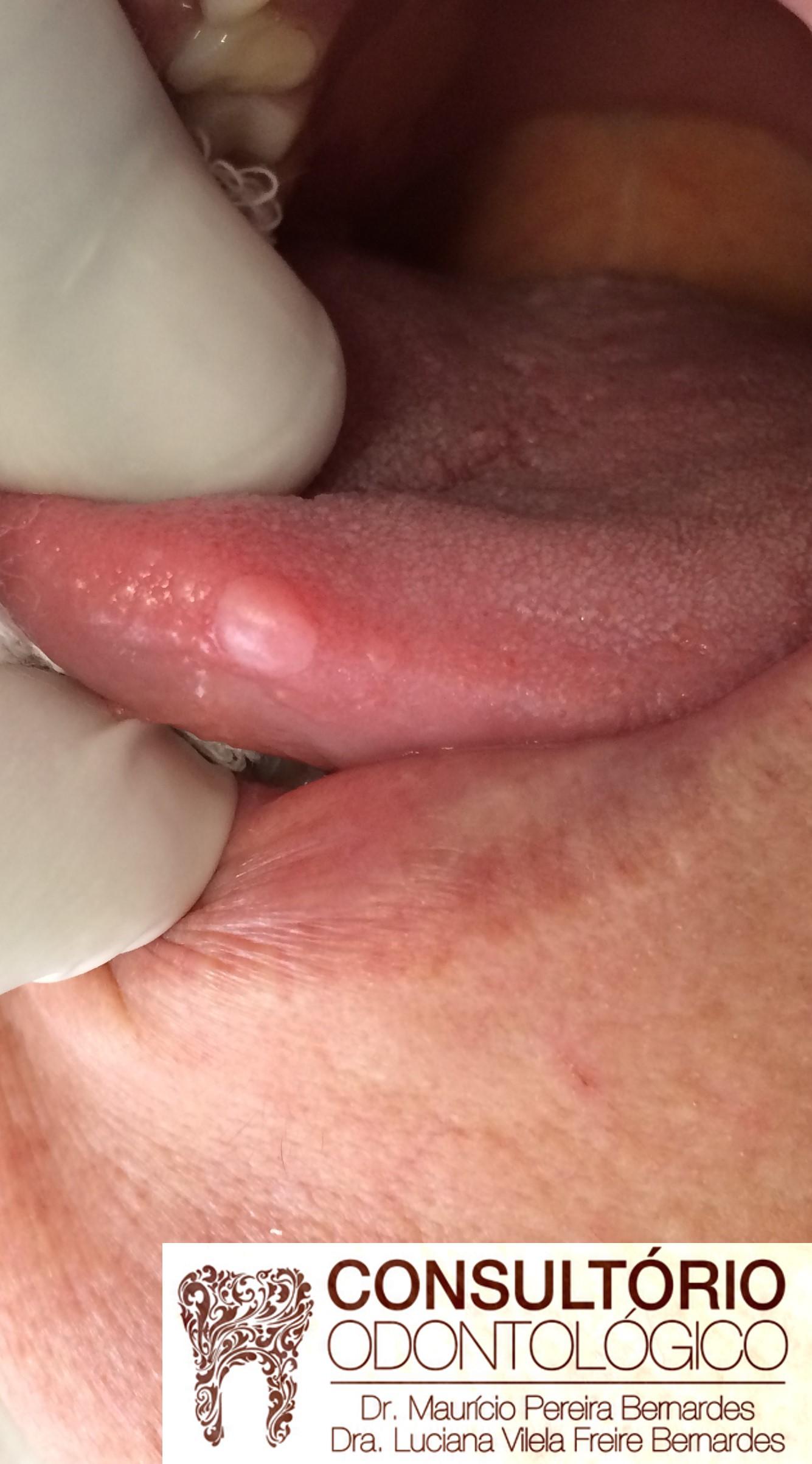 verruga bucal